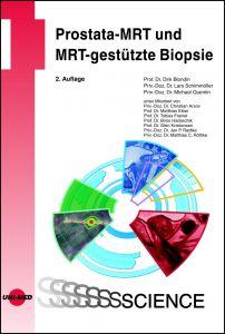 Prostata-MRT und MRT-gestützte Biopsie