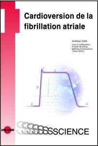 Cardioversion de la fibrillation atriale
