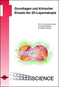 Grundlagen und klinischer Einsatz der 3D-Laparoskopie
