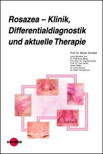 Rosazea – Klinik, Differentialdiagnostik und aktuelle Therapie