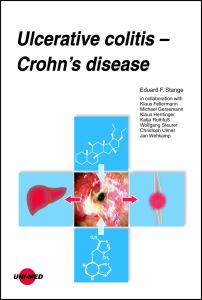 Ulcerative colitis - Crohn's disease