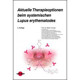 Aktuelle Therapieoptionen beim systemischen Lupus erythematodes