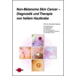 Non-Melanoma Skin Cancer - Diagnostik und Therapie von hellem Hautkrebs