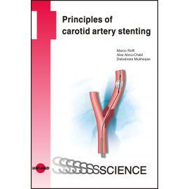 Principles of carotid artery stenting
